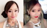 รีวิวผลลัพธ์หลังฉีด Botox พร้อมเตือนภัย Botox ปลอม เสี่ยงตาย! ดื้อยาทีหน้าเหี่ยวตลอดชีพ!!! และอันตรายจากโบท็อกซ์จีนเกาหลีที่อาจไม่ได้มาตรฐานอย่างที่โฆษณา!!! by ChingCanCook