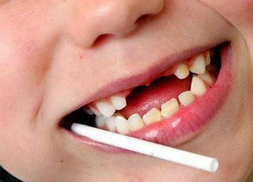 กรมอนามัยเผยเด็กไทยฟันผุเร่งรณรงค์ปรับการกิน