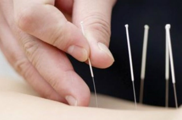 ฝังเข็มปรับสมดุลรักษาสิว ทางเลือกศาสตร์การแพทย์แผนจีน