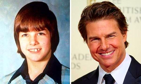 Tom Cruise ชายผู้บกพร่องในการอ่านสู่ซุปตาร์ระดับตำนาน