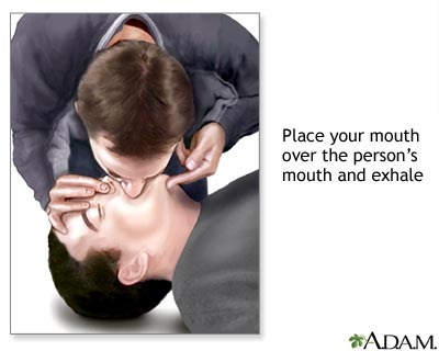ผลการค้นหารูปภาพสำหรับ การทำmouth to mouth