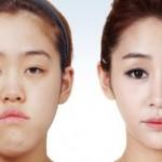 3 ศัลยกรรมที่สาวไทยนิยมสุดๆ