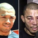 อย่างเยิน!! ก่อนต่อยและหลังต่อยของนักมวย UFC 18+  (2)