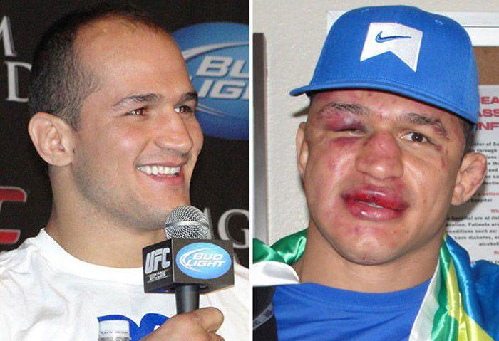 อย่างเยิน!! ก่อนต่อยและหลังต่อยของนักมวย UFC 18+