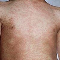 ไข้ออกผื่น-หรือ-โรคหัด-(Measles)