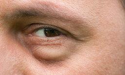 """""""หนังตาตก"""" สาเหตุหนึ่งของอาการผิดปกติในร่างกาย"""