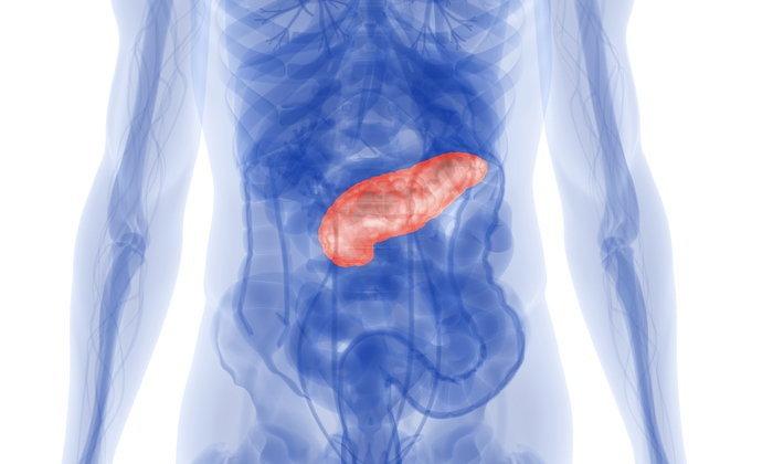 """น้ำตาลในเลือดสูง สัญญาณเตือน """"มะเร็งตับอ่อน"""""""