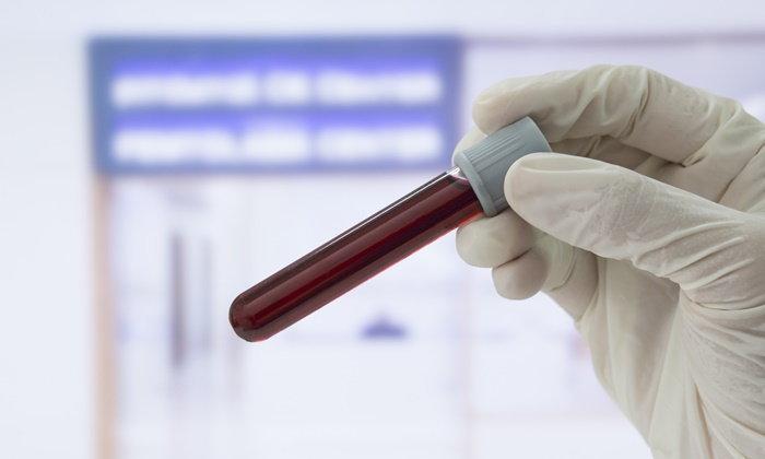 ตรวจเลือดวิธีใหม่ บอกได้ว่าเป็นมะเร็งหรือไม่? ที่อวัยวะใด?