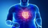 """ระวัง! ไขมันเกาะหัวใจ เสี่ยง """"หัวใจขาดเลือด"""""""