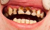 สงสัยไหม? ไม่แปรงฟัน 1 สัปดาห์ จะเกิดอะไรขึ้น?