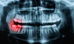 ฟันคุดคืออะไร? ทำไมต้องผ่าฟันคุด? ไม่ผ่าได้ไหม?