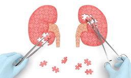 3 วิธีรักษาโรคไตเรื้อรัง