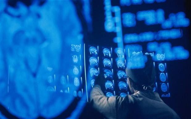 """""""คืนชีพสมอง"""" ของผู้เสียชีวิต เพื่องานวิจัยทางการแพทย์"""