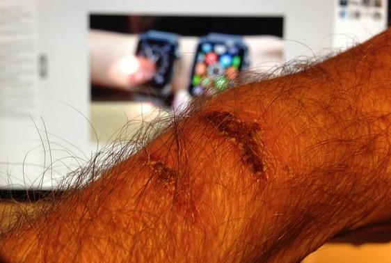 เป็นงง? ผู้ใช้ โวย Apple Watch ร้อนมากจนเป็นแผลไหม้ที่ข้อมือ