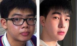 มิว สุรเดช เผยรายละเอียดศัลยกรรมที่ไทยและเกาหลี ราคารวมเหยียบล้าน