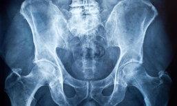 เหตุผลทำไมมนุษย์ไม่มีกระดูกอวัยวะเพศ