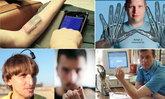 5 หนุ่มมนุษย์ไฮเทคฝัง Gadgets ในร่างกาย