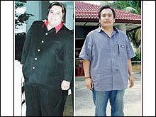 ผ่าตัดกระเพาะ ลดความอ้วน