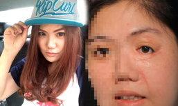 let me in thailand 2 พลิกชีวิตสาวเสียโฉมเพราะอุบัติเหตุ