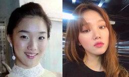 อีซองคยอง ดารานัยต์ตาสวย หวานใจ นัมจูฮยอก ศัลยกรรมหรือเปล่า มาดู