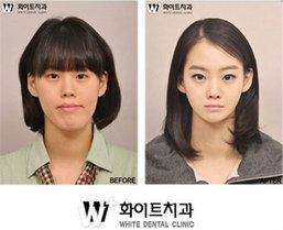 มาดูชาวเกาหลีใต้กับใบหน้าใหม่ หลังศัลยกรรมพลาสติก