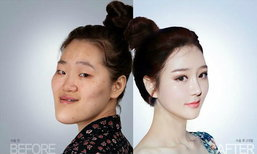 สวยราวกับนางฟ้า ศัลยกรรมเกาหลีเปลี่ยนชีวิตจนโลกตะลึง