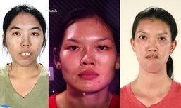 Let Me In Thailand 12 คน ก่อน-หลังศัลยกรรม ใครเปลี่ยนมาก เปลี่ยนน้อย ซูม!
