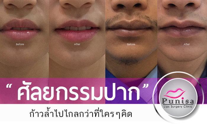 ศัลยกรรมปาก ก้าวล้ำไปไกลกว่าที่ใครๆคิด