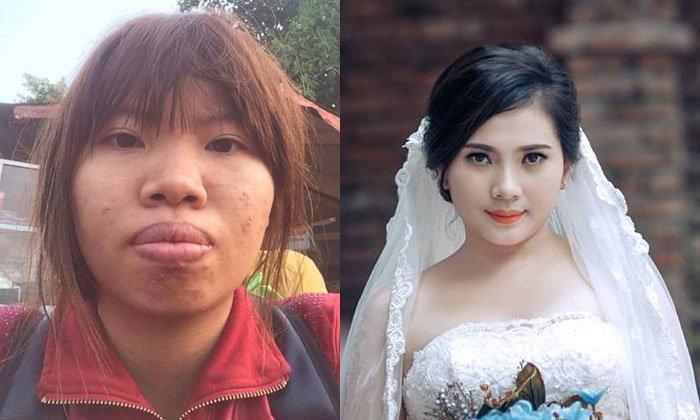 อึ้งทั้งงาน! สาวศัลยกรรมเปลี่ยนตัวเอง เซอร์ไพรส์แฟนในวันแต่งงาน