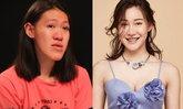 ศัลยกรรมพลิกชีวิต เปลี่ยนสาวรำวงคางยาว เป็นสาวเกาหลีสุดน่ารัก