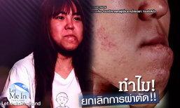 เหวิน Let Me In Thailand ริมฝีปากล่างหาย คางยื่น! แต่ทำไมทำศัลยกรรมไม่ได้