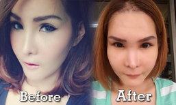 หมดความมั่นใจ! สาวไทยถูกหลอกทำศัลยกรรมเกาหลี งานนี้ถึงกับพัง