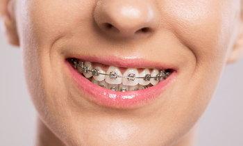 สียางจัดฟัน ต้องเลือกแบบไหนถึงจะดูดี