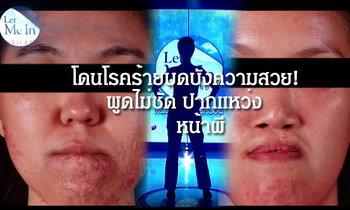 เปลี่ยนชีวิตใหม่! โรคร้ายบดบังความสวย พูดไม่ชัด ปากแหว่ง Let Me In Thailand คนที่ 3