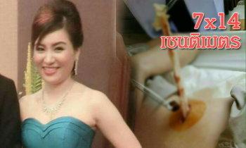 สุดช็อค! สาวไทยบินศัลยกรรมจมูกที่เกาหลี แต่มีผ้าก๊อซติดท้องกลับมา