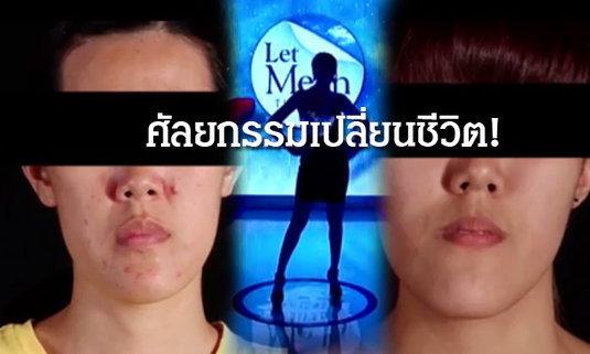 สาวหน้ายาวผู้อาภัพ! กับการศัลยกรรมเพื่อเปลี่ยนรูปหน้าใหม่ Let Me In Thailand คนที่ 4