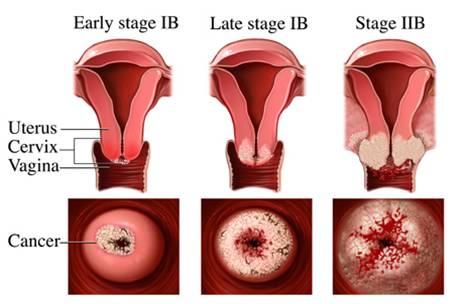 โรคมะเร็งรังไข่ และโรคภัยที่คุณผู้หญิงต้องควรระวัง