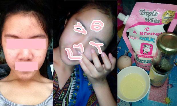 Before & After สวยไม่เกิน 100 บาท! เคล็ดลับหน้าขาวมาก